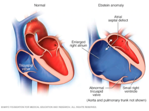Ebstein's Anomaly Heart Condition - Normal vs Ebstein's Anomaly Heart